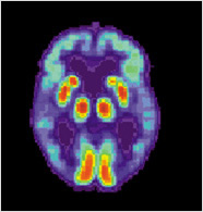 abnormal pet scan